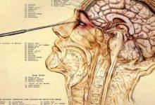 Historia de la lobotomía y sus implicaciones en la psicología